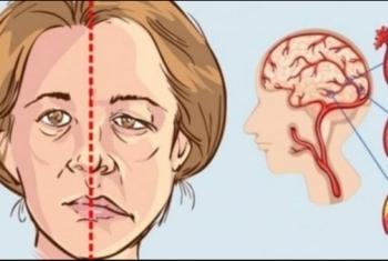 750 ألف مصاب بالسكتة الدماغية في مصر