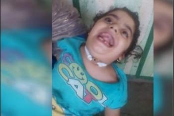 الإهمال الطبي يتسبب في إصابة طفلة من أولاد صقر بـ