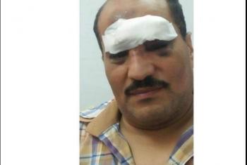 بسبب غياب الأمن.. إصابة سائق قطار بالحجارة في محطة